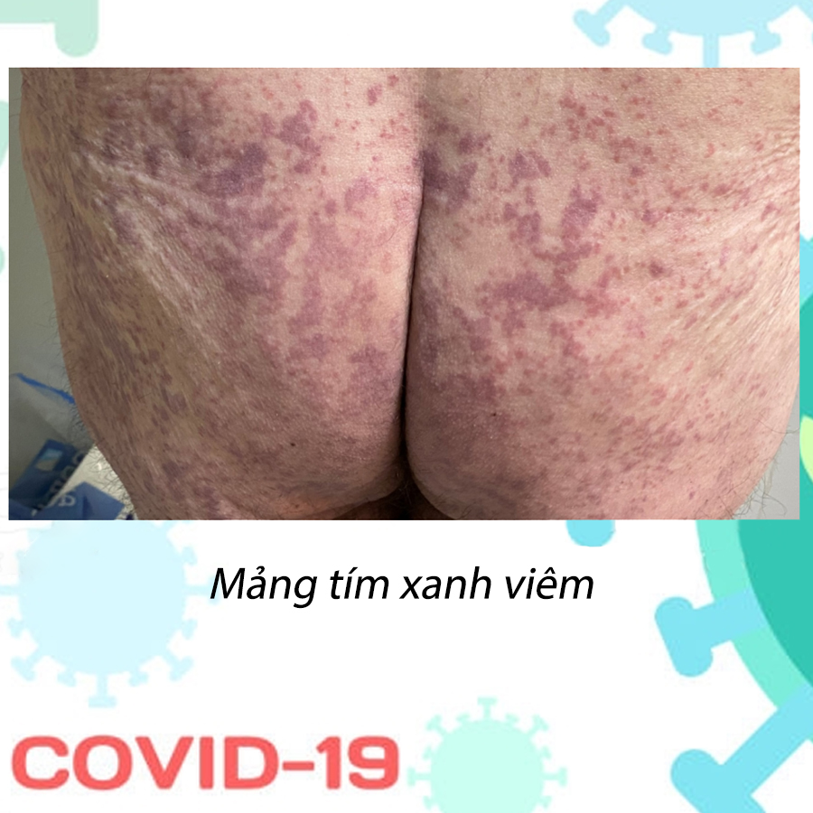 Biểu hiện da do covid 19